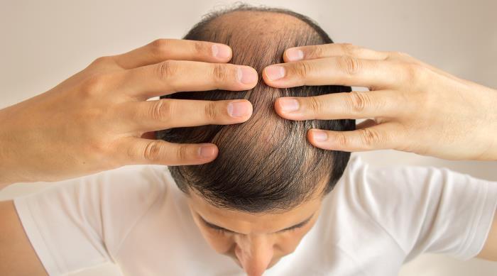 haarausfall - Warum bekommt man Haarausfall?