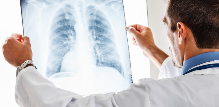 lungenerkrankungen - Lungenerkrankungen
