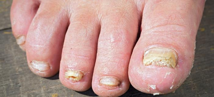 fusspilz ratgeber - Fußpilz - ein kleiner Ratgeber