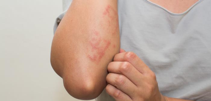 hautausschlag - Ursachen und Therapie von Hautausschlag