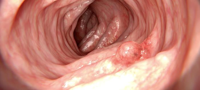 tumor nicht immer krebs - Ist jeder Tumor gleich Krebs?