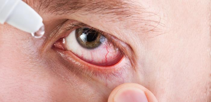allergische augenerkranungen - Was sind allergische Augenerkrankungen?