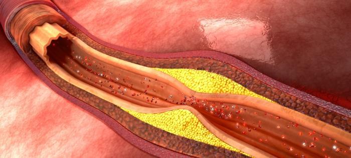 arteriosklerose - Arteriosklerose - Durchblutungsprobleme und Gefäßverschluss