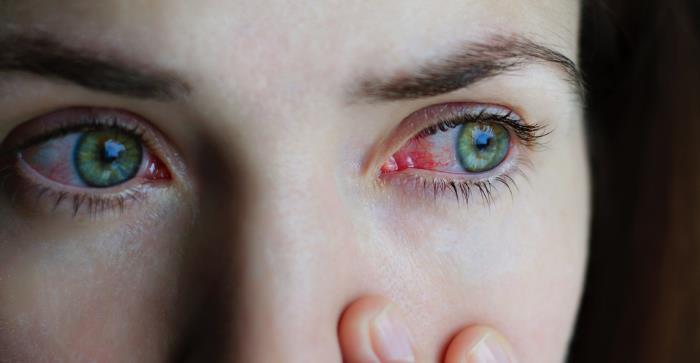 bindehautentzuendung - Was ist eine Bindehautentzündung?