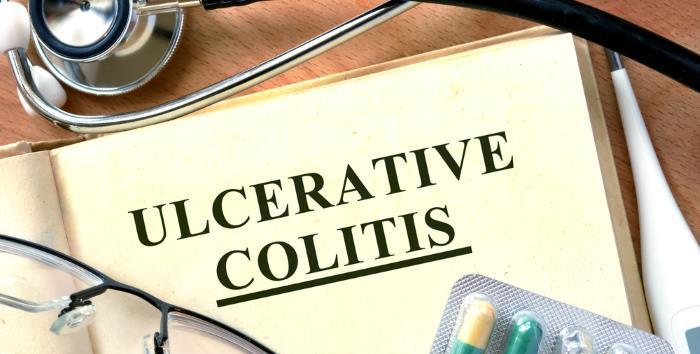 colitis ulcerosa - Chronische Dickdarmentzündung (Colitis ulcerosa)