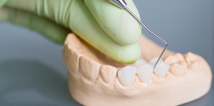 echte unechte zaehne - Der Unterschied zwischen echten und unechten Zähnen