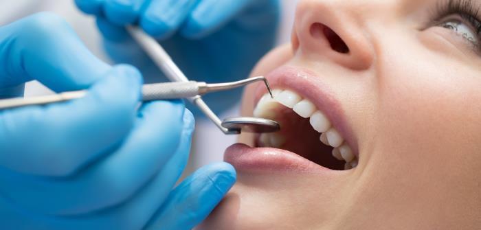 fluoridierung - Fluoridierung bietet Schutz für gesunde Zähne