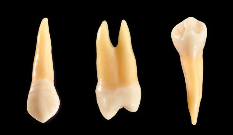 gesunderhaltung zahnwurzel 1 - Was ist Endontologie?