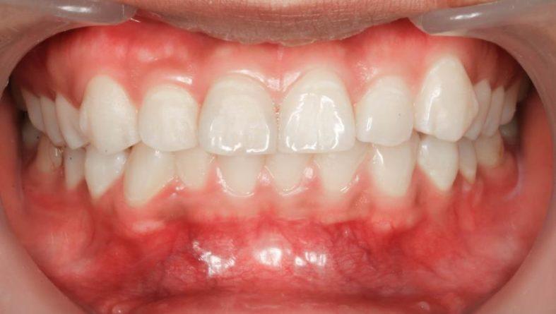 gingivitis - Gingivitis - was ist das?