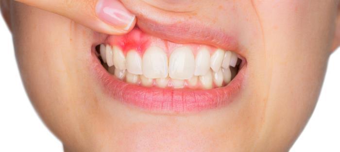 gingviae - Gingivae - Entzündung des Zahnfleisches
