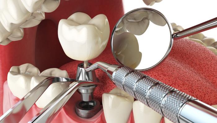 implantate a z - Implantate - Infos von A-Z zu Implantaten