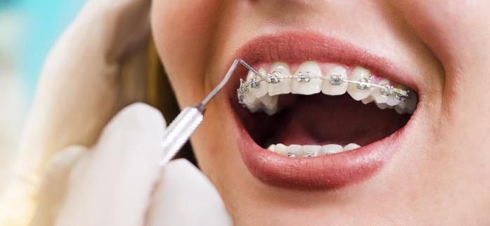 kieferorthopaedie - Kieferorthopädie – Zahnmedizin, die reguliert und korrigiert