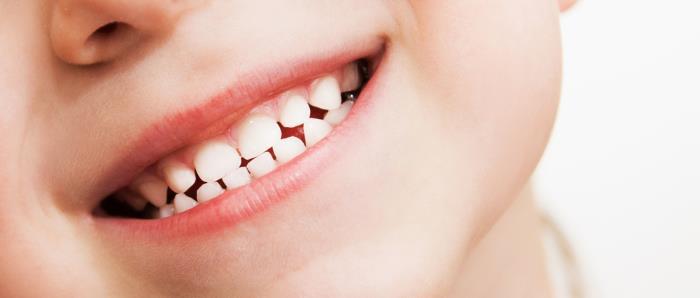milchgebiss - Die ersten Zähne bilden das Milchgebiss