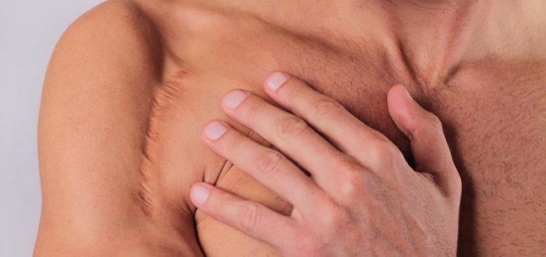 narbenschmerzen - Narbenschmerzen – auch lange Zeit nach einer Operation möglich