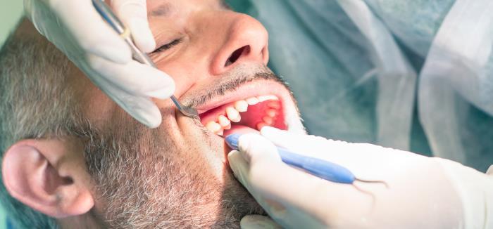 wurzelbehandlung - Wurzelerkrankungen – Probleme mit den Zahnwurzeln