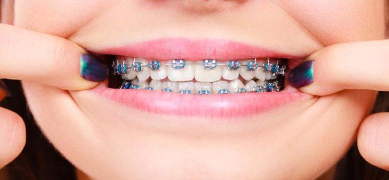 zahnregulierung zahnspange - Zahnregulierung durch Anbringung von Zahnspangen
