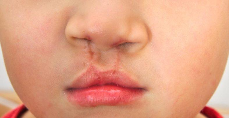 lippen kiefer gaumenspalte - Cheilognathopalatoschisis - bekannt als Lippen-Kiefer-Gaumenspalte