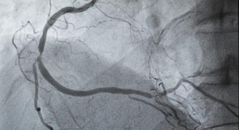 angiographie - Was ist eine Angiographie?