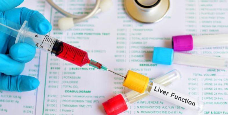 leberuntersuchung - Untersuchungen der Leber