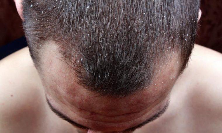 silicea mangel - Mangel an Silicea und die Folgen