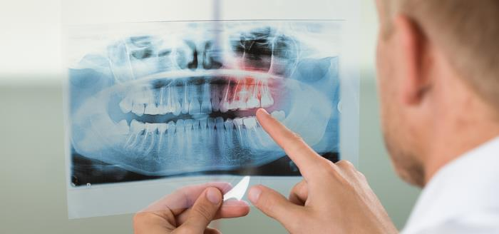 knochenaufbau kiefer - Zahnimplantate trotz wenig Knochenangebot: Das ist möglich!