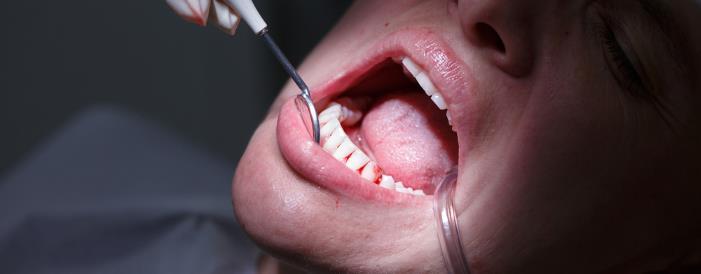 parodontitis - Parodontitis vorbeugen & heilen