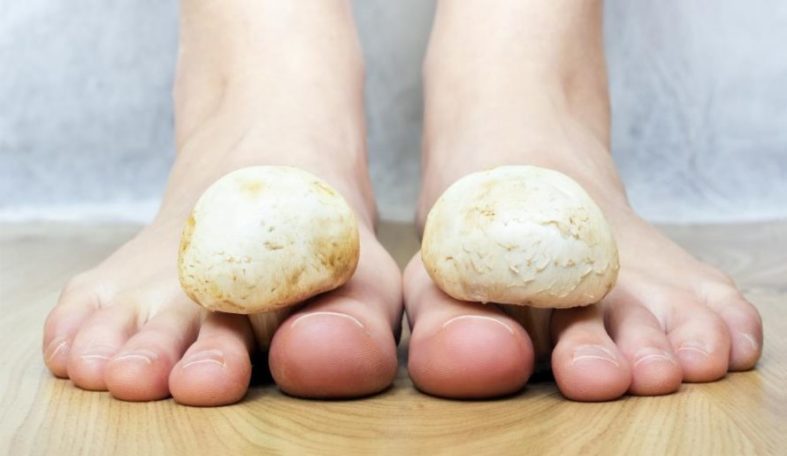 Ansteckung von Fußpilz