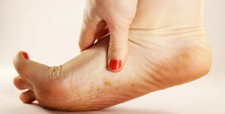 Fußpilz Erscheinungsformen