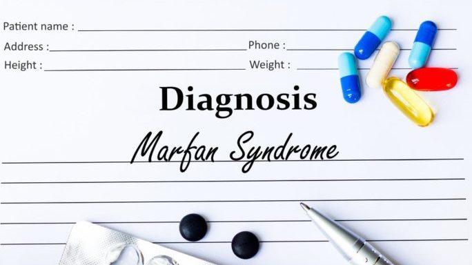 cropped marfansyndrom - Das Marfan Syndrom - seltene, schwere Krankheit